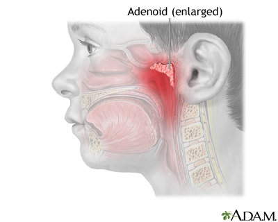 Cure adenoids without surgery