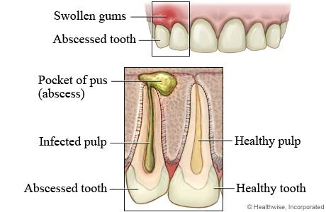 natural treatment of abscess