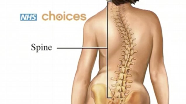 natural permanent cure of Scoliosis