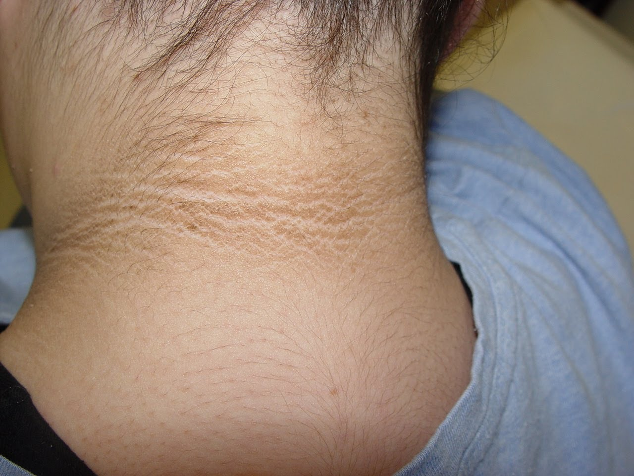 natural cure of Acanthosis Nigricans