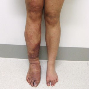 Natural options for Klippel-Trenaunay Syndrome (KTS)