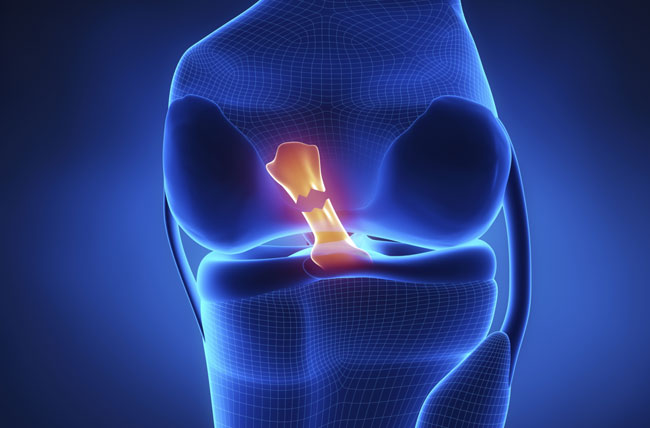 ACL tear healing without surgery