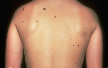 Cure Moles Without Surgery