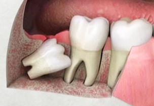 Eruption and Treatment of Impacted Wisdom Tooth without surgery