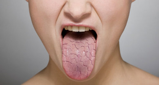 permanent natural cure of dry mouth