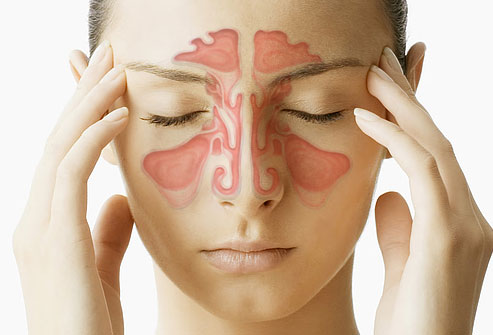 natural treatment of sinusitis