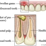 natural treatment of abscess