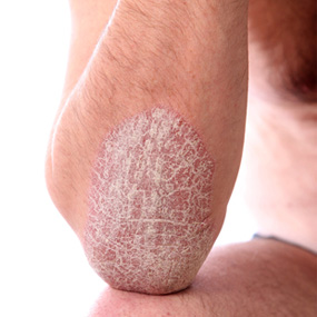 natural treatment of psoriasis