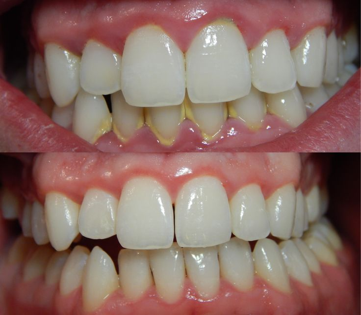 Fast Permanent Natural cure for bleeding gums and gums disease